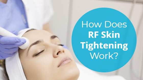 """Woman having a Radio Frequency facial with the title """"How Does RF Skin Tightening Work?"""""""