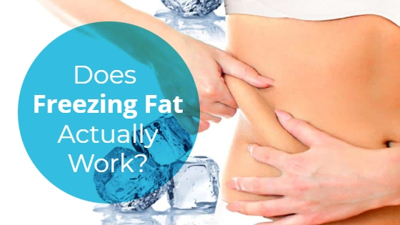 """Woman in white shorts top pinching the fat on her hips with the title """"Does Freezing Fat Actually Work?"""""""