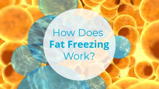 """Fat cells with the title """"How Does Fat Freezing Work?"""""""