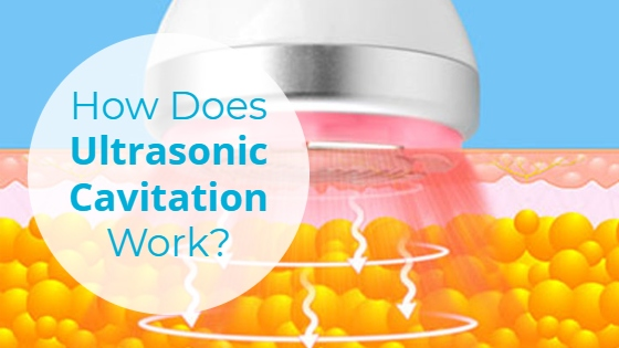 """Cross-section of ultrasound waves penetrating fat cells with the caption """"How Does Ultrasonic Cavitation Work?"""""""