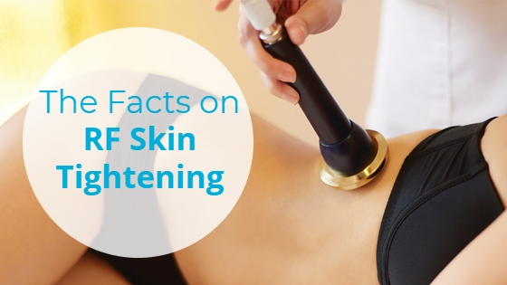 """Woman having a monopolar RF treatment on the side of her body with the title """"The Facts on RF Skin Tightening"""""""