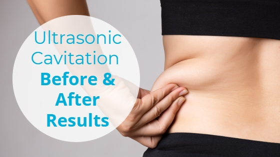 """Woman pinching fat on her hips with the title """"Ultrasonic Cavitation: Before & After Results"""""""